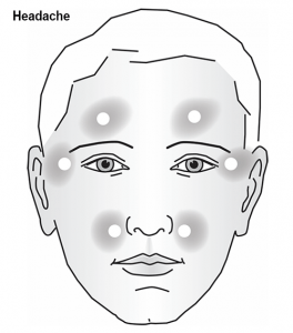 Headache diagram 1