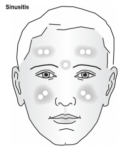 Sinusitis-diagram