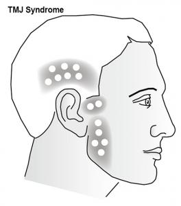 TMJ Syndrome diagram