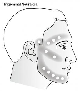 Trigeminal-Neuralgia-Diagram