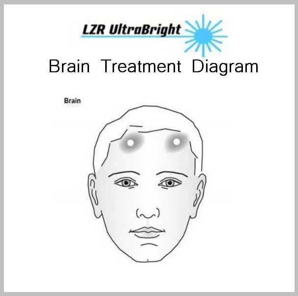 Lower Body Diagrams 1 BRAIN TREATMENT DIAGRAM