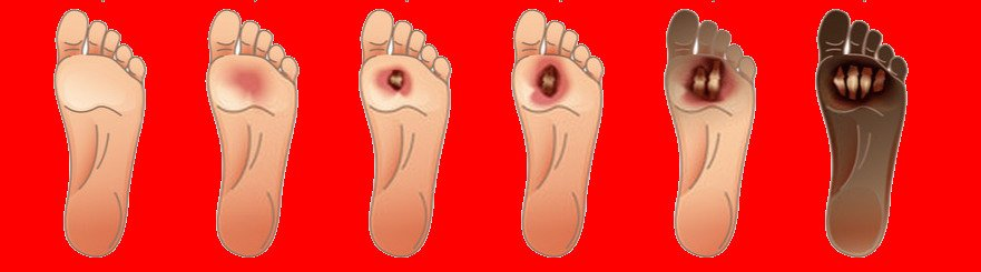 Laser Therapy On Foot Ulcers 2020